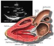 2017 pocetni kurs ehokardiografije srce